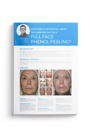 Full Face Phenol Peeling?